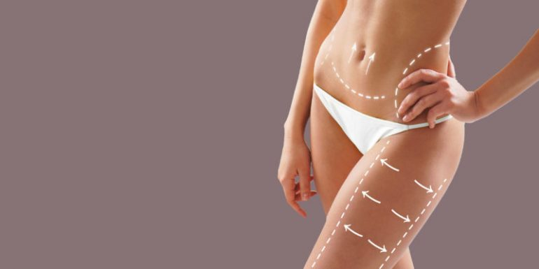 What You Need to Know about Thigh Liposuction | 2018