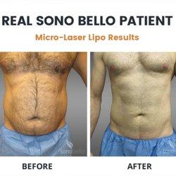 Sonobello Prices - Latest Sono Bello Price List Guide & Cosmetic